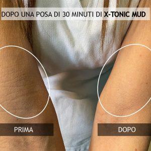 PRIMA-E-DOPO-BRACCIA